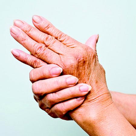 Manos con reumatismo